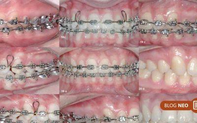 Eficiência no tratamento da má-oclusão de classe II com o aparelho Forsus