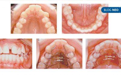 Expansão rápida da maxilla e seu efeito na respiração: revisão de literatura