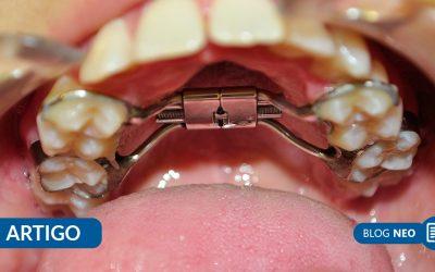 [Artigo] Importância da expansão rápida da maxila no tratamento do paciente respirador bucal