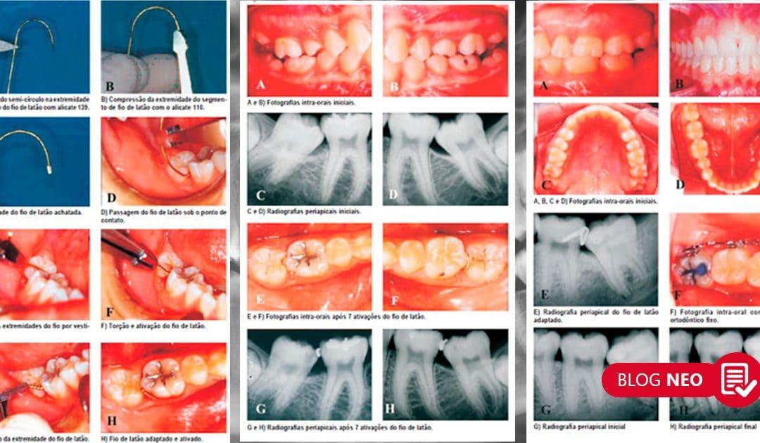 Fio de Latão: alternativa para o clínico geral no tratamento de molares ectópicos semi-irrompidos