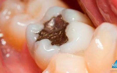 Aspirina pode regenerar dente após cárie, dizem cientistas