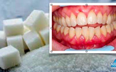 O alto consumo de açúcar dá origem a custos de tratamento dentário de milhares de milhões de euros mundialmente.